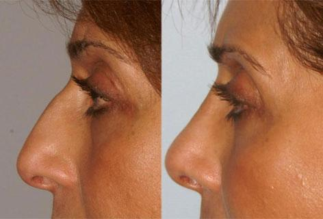 Rhinoplasty before and after photos in San Francisco, CA, Patient 13490