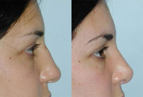 Rhinoplasty before and after photos in San Francisco, CA, Patient 13497