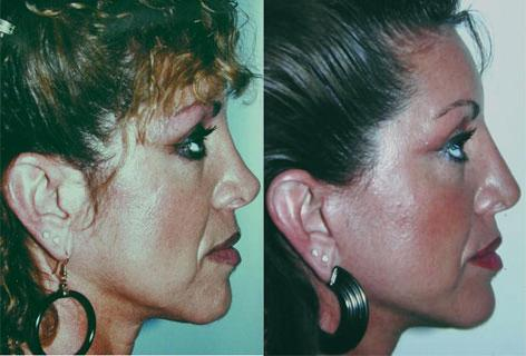 Rhinoplasty before and after photos in San Francisco, CA, Patient 13502