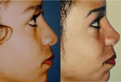 Rhinoplasty before and after photos in San Francisco, CA, Patient 13507