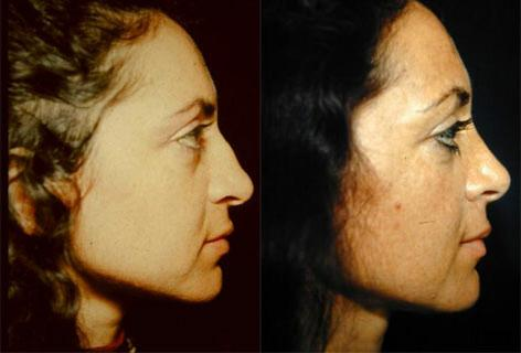 Rhinoplasty before and after photos in San Francisco, CA, Patient 13512