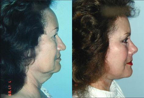 Rhinoplasty before and after photos in San Francisco, CA, Patient 13515