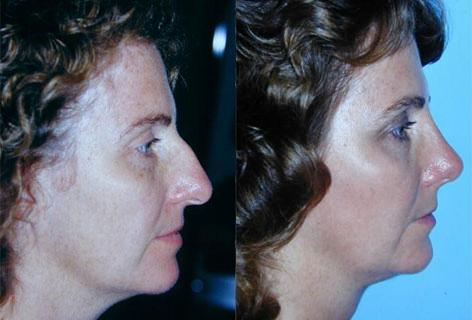 Rhinoplasty before and after photos in San Francisco, CA, Patient 13521