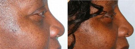 Rhinoplasty before and after photos in San Francisco, CA, Patient 13524