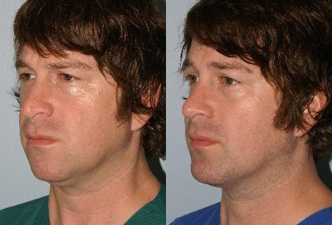 Rhinoplasty before and after photos in San Francisco, CA, Patient 13532