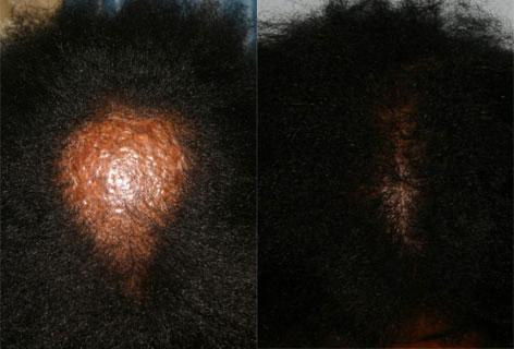 Hair Reconstructive Scalp before and after photos in San Francisco, CA, Patient 13827