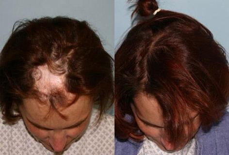 Hair Reconstructive Scalp before and after photos in San Francisco, CA, Patient 13832
