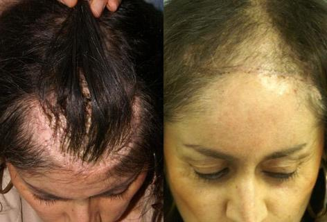 Hair Reconstructive Scalp before and after photos in San Francisco, CA, Patient 13852