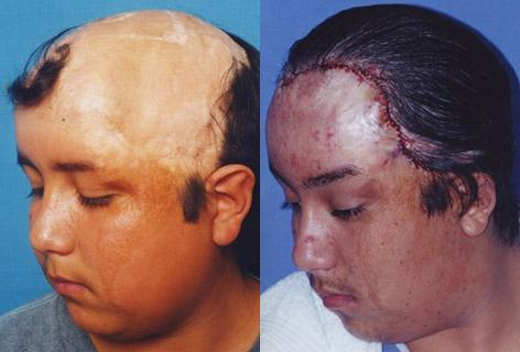 Hair Reconstructive Scalp before and after photos in San Francisco, CA, Patient 13878