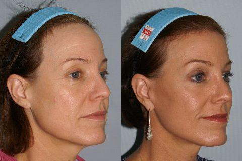 Hair Line Lowering before and after photos in San Francisco, CA, Patient 13914