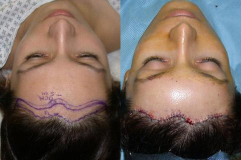 Hair Line Lowering before and after photos in San Francisco, CA, Patient 13925