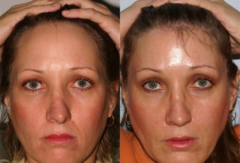 Hair Line Lowering before and after photos in San Francisco, CA, Patient 13936