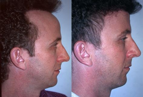 Hair Line Lowering before and after photos in San Francisco, CA, Patient 13941
