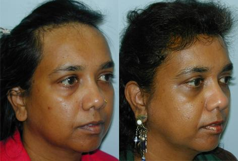 Hair Line Lowering before and after photos in San Francisco, CA, Patient 13946