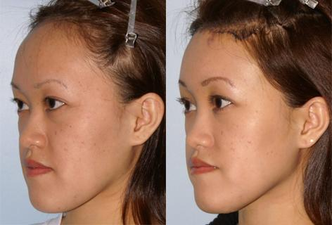 Hair Line Lowering before and after photos in San Francisco, CA, Patient 13951