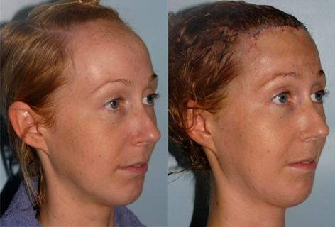 Hair Line Lowering before and after photos in San Francisco, CA, Patient 13963