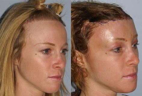 Hair Line Lowering before and after photos in San Francisco, CA, Patient 13972