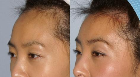 Hair Line Lowering before and after photos in San Francisco, CA, Patient 13981