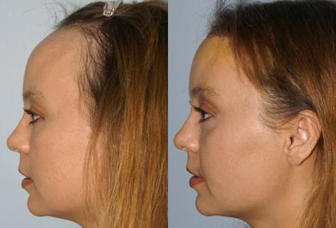 Hair Line Lowering before and after photos in San Francisco, CA, Patient 13988