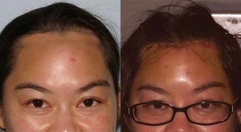 Hair Line Lowering before and after photos in San Francisco, CA, Patient 13999