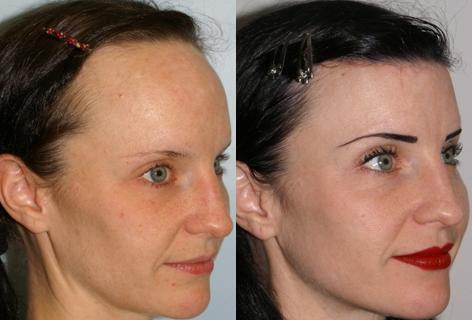 Hair Line Lowering before and after photos in San Francisco, CA, Patient 14004