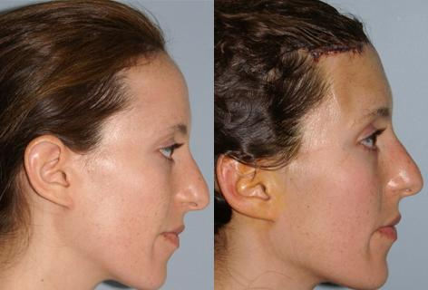 Hair Line Lowering before and after photos in San Francisco, CA, Patient 14011