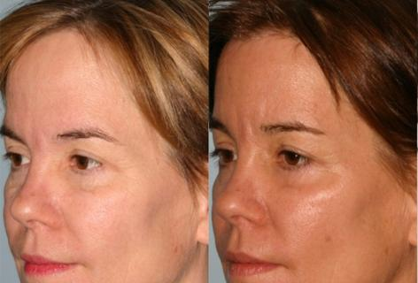 Hair Line Lowering before and after photos in San Francisco, CA, Patient 14018