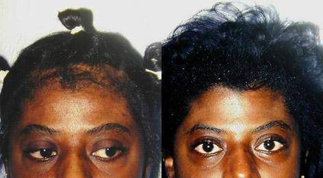 Hair Line Lowering before and after photos in San Francisco, CA, Patient 14032
