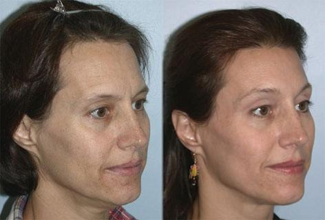 Hair Line Lowering before and after photos in San Francisco, CA, Patient 14035