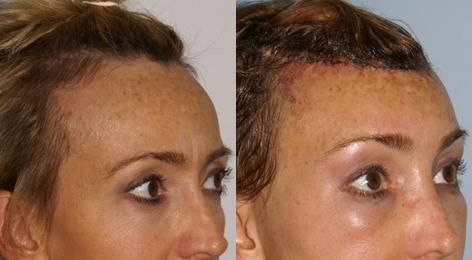 Hair Line Lowering before and after photos in San Francisco, CA, Patient 14047