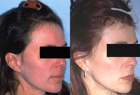 Hair Line Lowering before and after photos in San Francisco, CA, Patient 14056