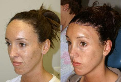 Hair Line Lowering before and after photos in San Francisco, CA, Patient 14059