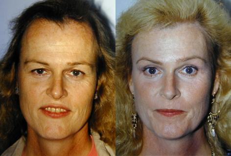 Hair Line Lowering before and after photos in San Francisco, CA, Patient 14066