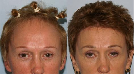 Hair Line Lowering before and after photos in San Francisco, CA, Patient 14072