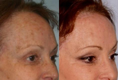 Hair Line Lowering before and after photos in San Francisco, CA, Patient 14077