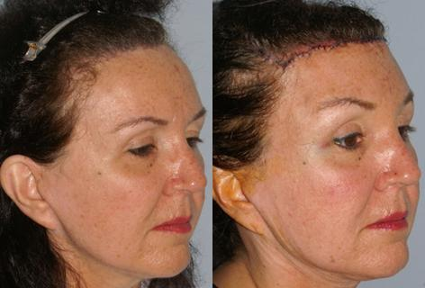 Hair Line Lowering before and after photos in San Francisco, CA, Patient 14089
