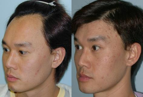 Hair Line Lowering before and after photos in San Francisco, CA, Hairline Lowering in San Francisco, CA