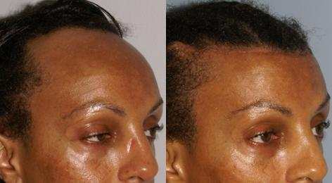 Hair Line Lowering before and after photos in San Francisco, CA, Patient 14101