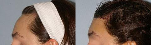 Hair Line Lowering before and after photos in San Francisco, CA, Patient 14108
