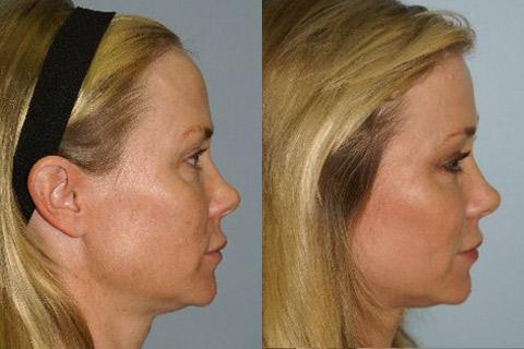 Hair Line Lowering before and after photos in San Francisco, CA, Patient 14119