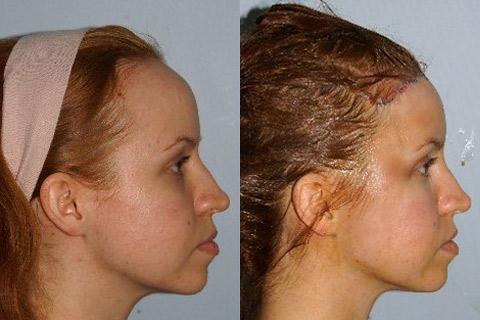 Hair Line Lowering before and after photos in San Francisco, CA, Patient 14128