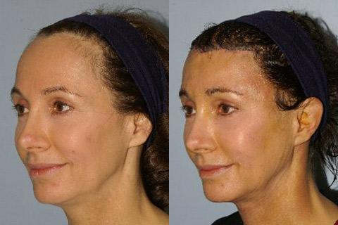 Hair Line Lowering before and after photos in San Francisco, CA, Patient 14139