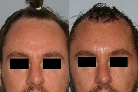 Hair Line Lowering before and after photos in San Francisco, CA, Patient 14150