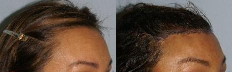 Hair Line Lowering before and after photos in San Francisco, CA, Patient 14170