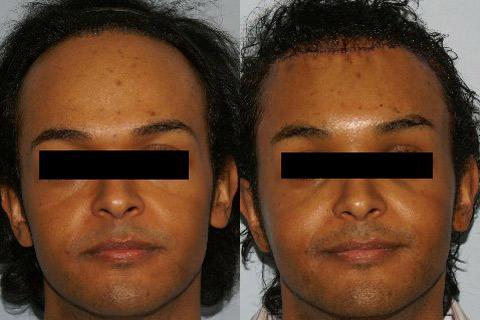 Hair Line Lowering before and after photos in San Francisco, CA, Patient 14181