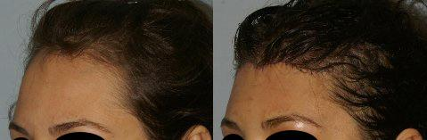 Hair Line Lowering before and after photos in San Francisco, CA, Patient 14190