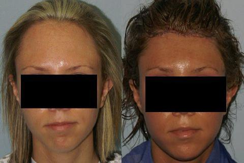 Hair Line Lowering before and after photos in San Francisco, CA, Patient 14197