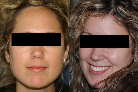 Hair Line Lowering before and after photos in San Francisco, CA, Patient 14208