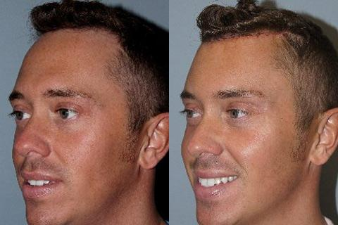 Hair Line Lowering before and after photos in San Francisco, CA, Patient 14228