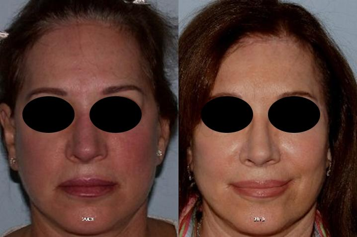 Hair Line Lowering before and after photos in San Francisco, CA, Patient 14251